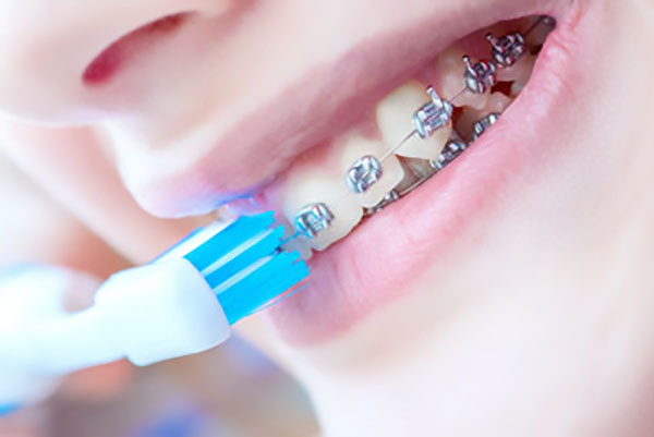 Tips For Oral Hygiene During Your Orthodontic Treatment