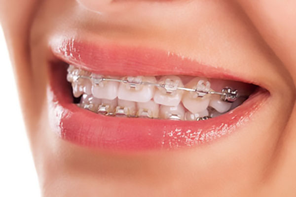 Orthodontics: How Do Clear Braces Work To Straighten Your Teeth?